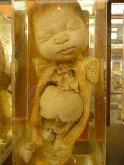 Siriraj Medical Museum Bangkok | Siriraj Medical Museum in Bangkok - embalwed children, siamese ...